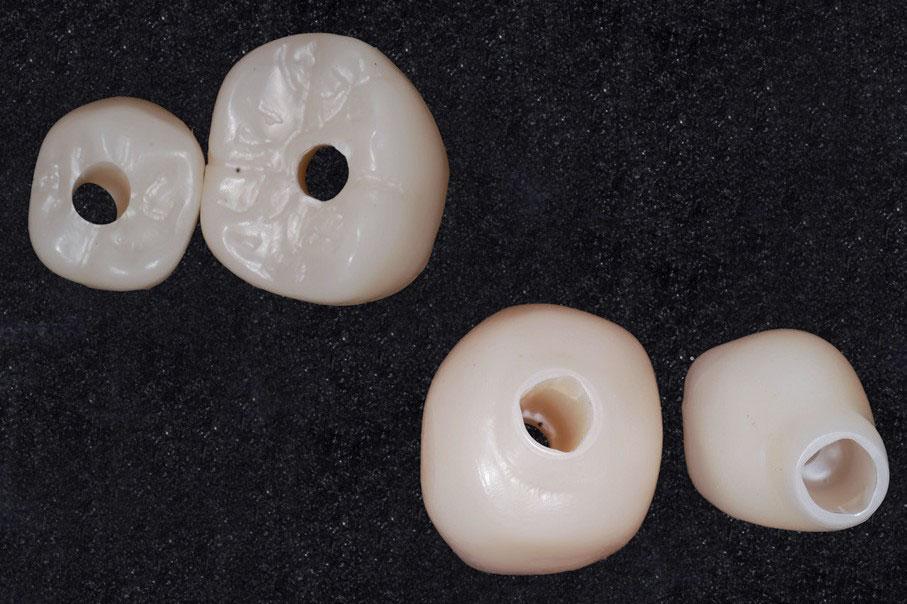 Las coronas de zirconio sinterizadas