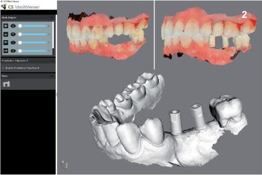 Imágenes de escaneado intraoral