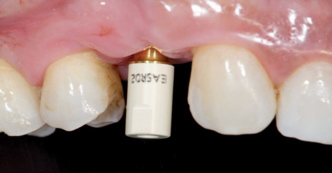 Pilar de escaneado atornillado al implante