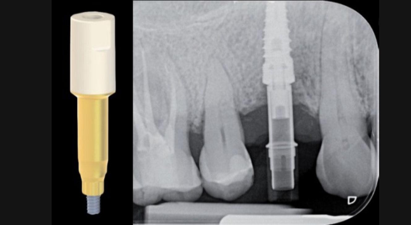Radiografía endoral de control del acoplamiento